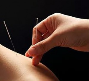 acupuncture action