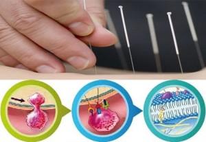 Acupunctuur Immune booster