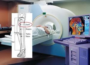 fMRI acupunctuur onderzoek